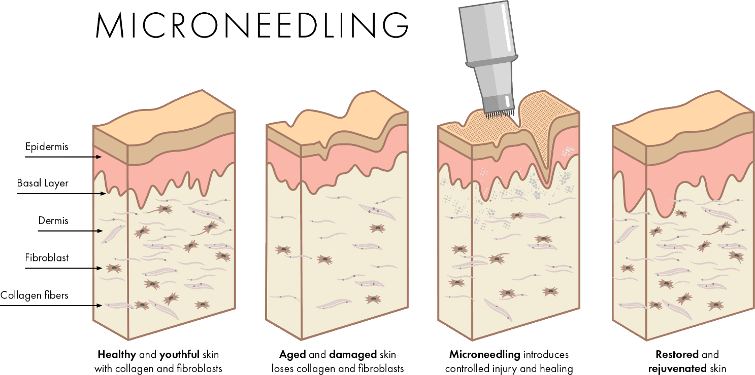 microneedling footer